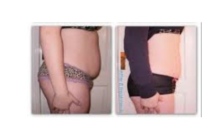 weight loss clinic, Cryogenic Lypolysis, fat freezing